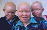 Albīni bērni no Tanzānijas, kuru miesa ir vērtīgāka par zeltu