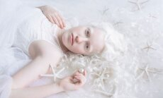 ФОТО: израильский фотограф создала серию портретов людей-альбиносов, и это невероятно красиво
