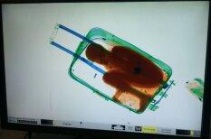 Kā rentgena staros izskatās bērns, kuru pārvadā čemodānā