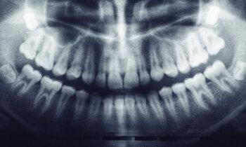 Skaists smaids uz desmit gadiem: vai savu zobu zaudēšana ir tā vērta