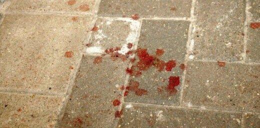 Вор, проникший в магазин, серьезно повредил ногу