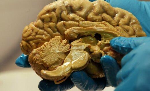 smadzenes