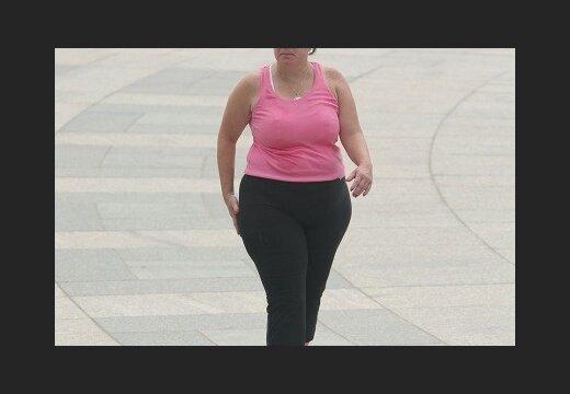 Центр похудения: коррекция фигуры, снижение веса Центр