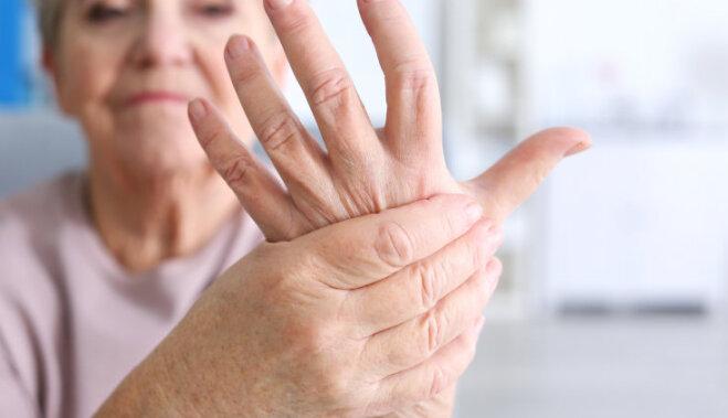 15 вещей об артрите, которые стоит знать тем, у кого его нет