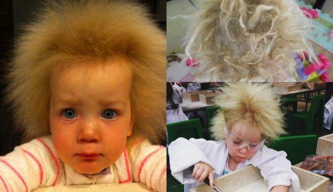 Neparasti jeb neizķemmējami mati meitenīti no Austrālijas padara par sociālo tīklu zvaigznīti