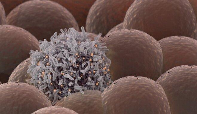 Melanoma tuvplānā: riska faktori, pašpārbaudes veikšana un ārstēšana
