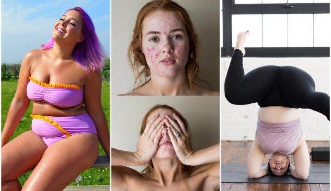 Вопреки стандартам красоты: истории шести женщин, которые без стеснения показывают свое тело в Instagram