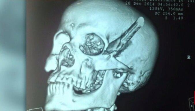 Brazīlietis pavada trīs stundas ar nazi galvā