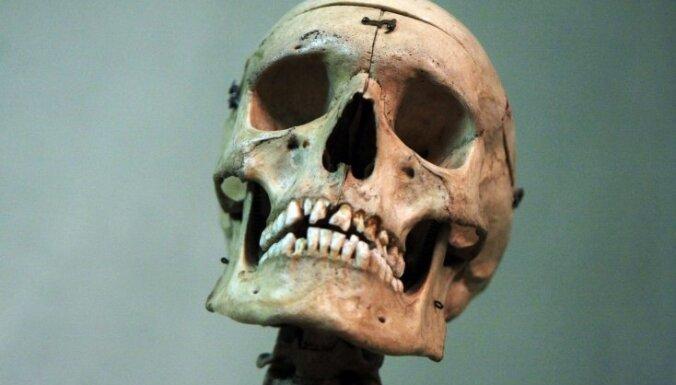 Medicīnas muzejā atklās starptautisku izstādi 'Fabrica vitae'