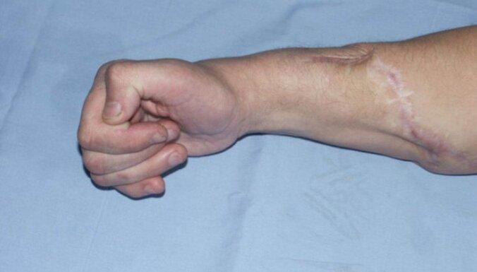 Zāģis pret cilvēku! Mediķi aicina būt uzmanīgākiem un sniedz padomus, kā rīkoties zāģētas traumas gadījumā