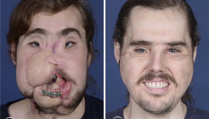 Обезображенный калифорниец впервые показал свое новое пересаженное лицо