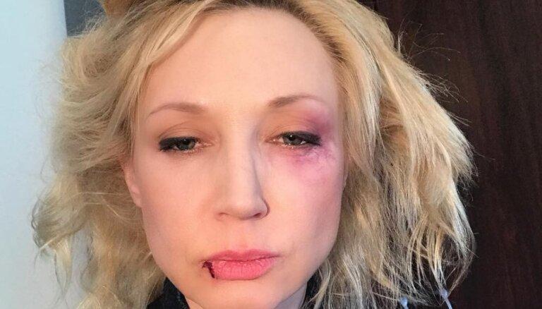 ФОТО: Кристина Орбакайте показала следы побоев на лице