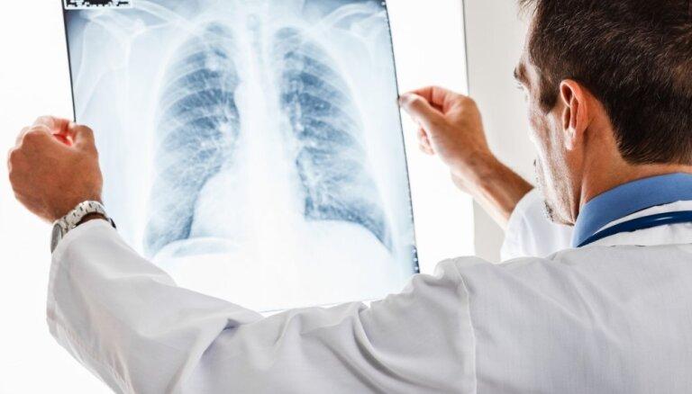 Latvija – pirmā valsts Eiropā ar samazinātu starojuma devu radioloģijas izmeklējumos bērniem