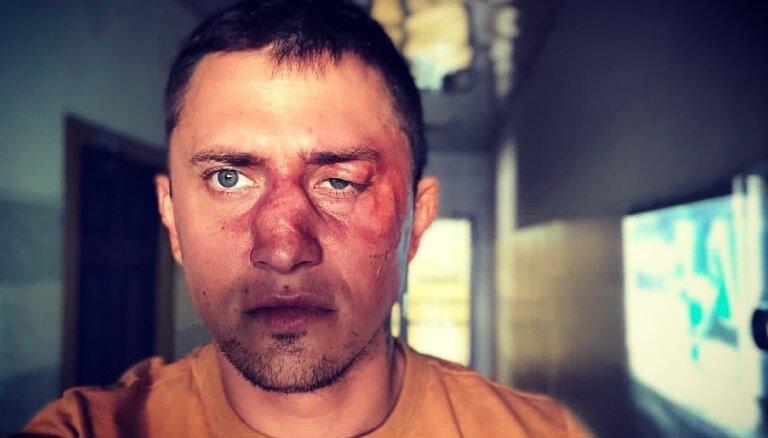 Стали известны обстоятельства избиения Павла Прилучного