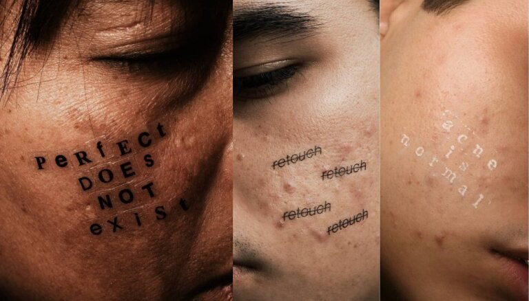 Nesasniedzamie skaistuma standarti – fotogrāfs iemūžina aknes tuvplānus